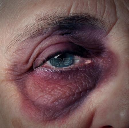 19446908-abus-envers-les-aines-ou-les-mauvais-traitements-envers-les-aines-comme-une-personne-agee-avec-un-il.jpg